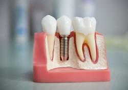 Имплантация зубов: лучшие зубные импланты и цены операции