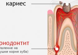 Как вылечить зубы?